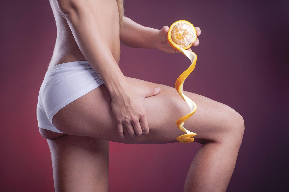 Herbs to Melt Away Cellulite